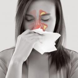 Sinusitis (Consulting)