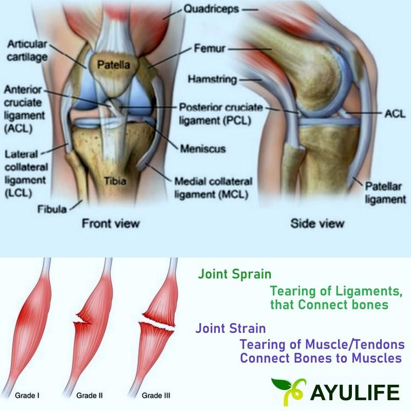 Joint Strain Joint Sprain